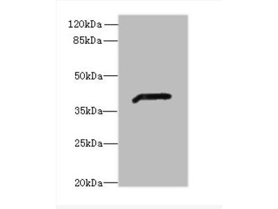 ADH7 Polyclonal Antibody