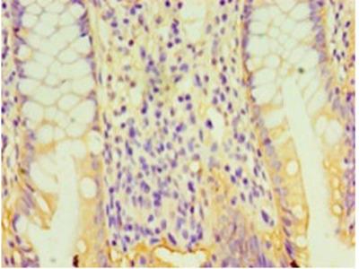 GPA33 Polyclonal Antibody