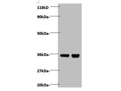 ZBED1 Polyclonal Antibody