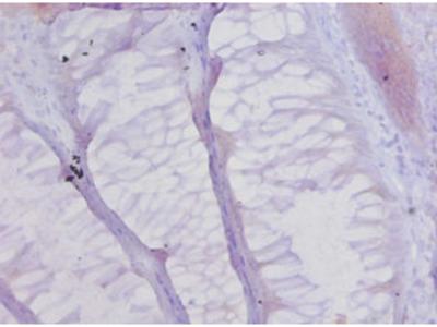 COL17A1 Polyclonal Antibody