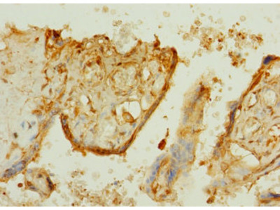 TTLL2 Polyclonal Antibody
