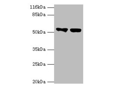 KRT8 Polyclonal Antibody