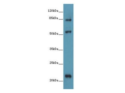 PYHIN1 Polyclonal Antibody