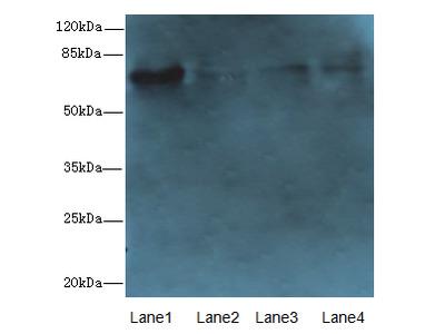 PADI2 Polyclonal Antibody