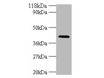 HLA-G Polyclonal Antibody