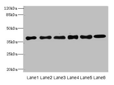 TMEM68 Polyclonal Antibody
