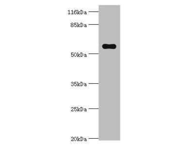 Pklr Polyclonal Antibody