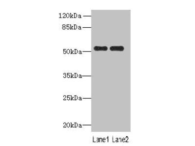 PAH Polyclonal Antibody
