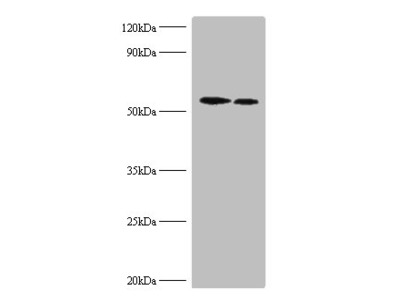 RPS6KB2 Polyclonal Antibody
