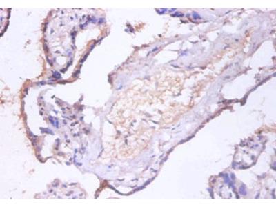 CHMP2A Polyclonal Antibody