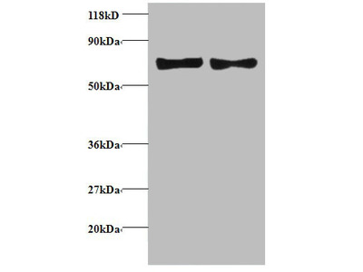 CCL5 Polyclonal Antibody