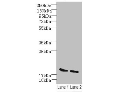 SKP1 Polyclonal Antibody