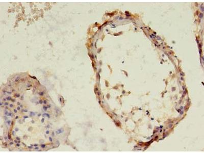 TBC1D20 Polyclonal Antibody