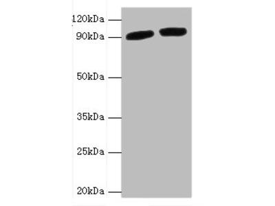POSTN Polyclonal Antibody