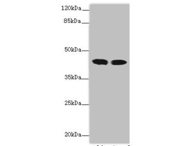 ACADL Polyclonal Antibody