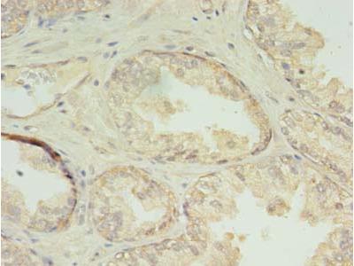CHMP7 Polyclonal Antibody