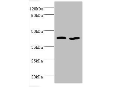 GOT2 Polyclonal Antibody