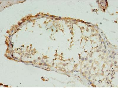 RMND5B Polyclonal Antibody