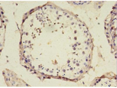 SRSF10 Polyclonal Antibody