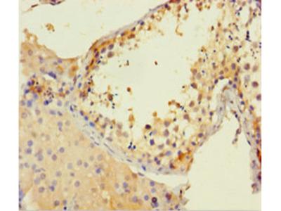 CSF2RA Polyclonal Antibody