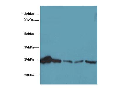 RAB6B Polyclonal Antibody