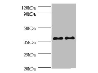 SUPT3H Polyclonal Antibody
