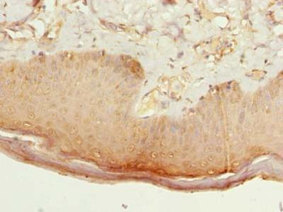 CMTR2 Polyclonal Antibody