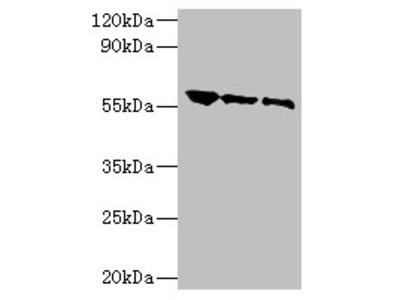 Glycoprotein G Polyclonal Antibody