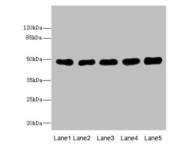 TUBB3 Polyclonal Antibody