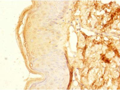 ZNF513 Polyclonal Antibody