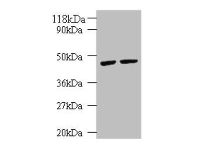 KRT18 Polyclonal Antibody