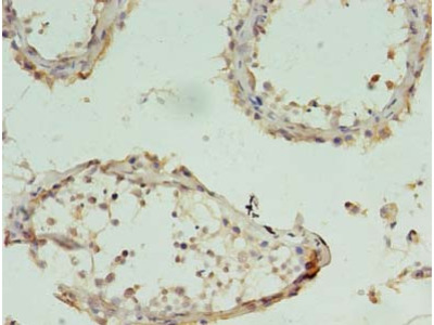 CHAC1 Polyclonal Antibody