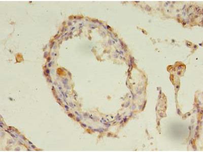 CXADR Polyclonal Antibody