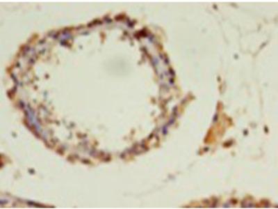 POLR3A Polyclonal Antibody