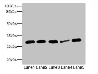 IGFBP1 Polyclonal Antibody
