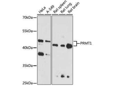 PRMT1 Polyclonal Antibody