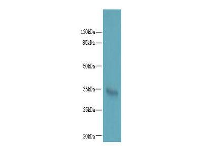 LYSMD3 Polyclonal Antibody