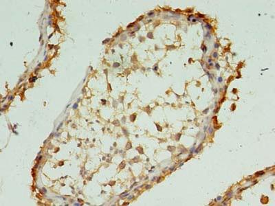 XAGE1A Polyclonal Antibody