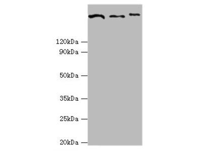 CLTCL1 Polyclonal Antibody