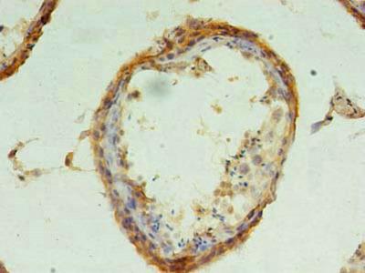 CHMP6 Polyclonal Antibody