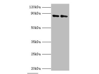 CFB Polyclonal Antibody