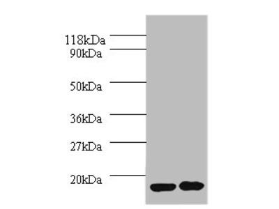 IL1RN Polyclonal Antibody