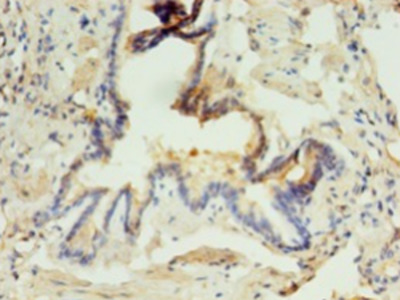 ABHD3 Polyclonal Antibody