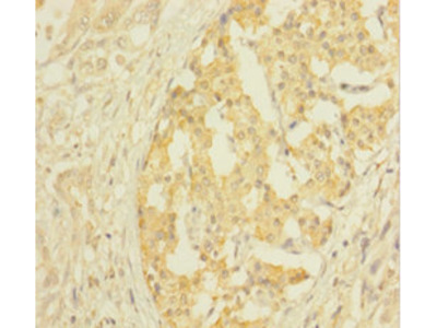 CLTB Polyclonal Antibody