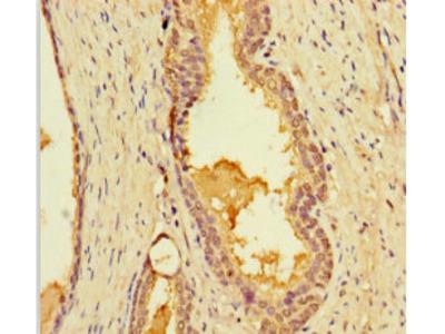 LIMS3 Polyclonal Antibody