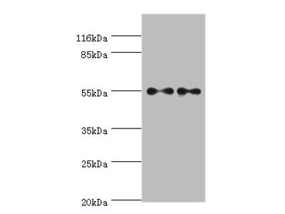 THRA Polyclonal Antibody