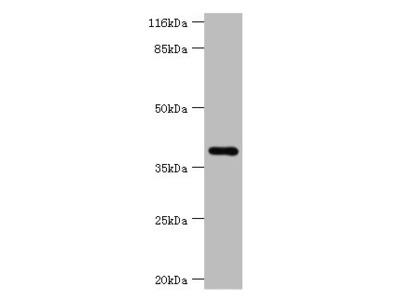 HAVCR1 Polyclonal Antibody