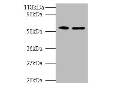 CS Polyclonal Antibody