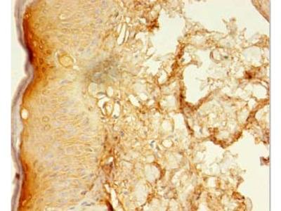 LSMEM2 Polyclonal Antibody