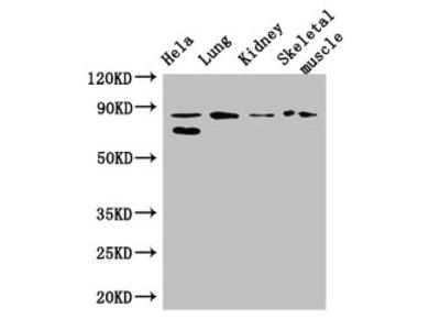 PRDM4 Polyclonal Antibody